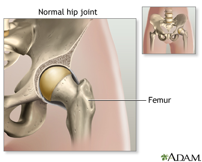 Hip joint replacement - series—Normal anatomy: MedlinePlus Medical ...