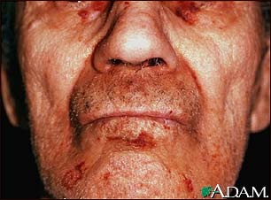 Amyloidosis of the face