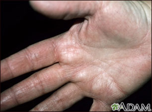 Hyperlinearity in atopic dermatitis, on the palm