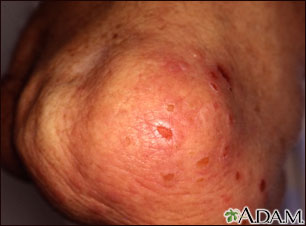 Dermatitis, herpetiformis on the knee