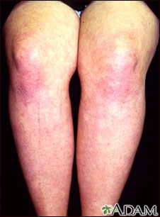Dermatomyositis on the legs
