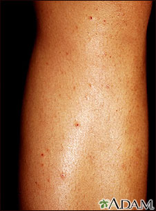 Folliculitis on the leg