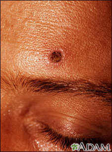 Histoplasmosis, disseminated in HIV patient