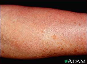 Mastocytosis, diffuse cutaneous