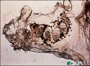 Scabies mite, eggs, and stool photomicrograph