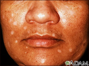 Vitiligo, drug induced: MedlinePlus Medical Encyclopedia Image