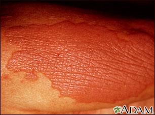 Lichen simplex chronicus