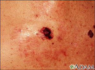 Skin cancer, close-up of level IV melanoma