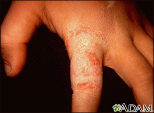 Ringworm, tinea manuum on the finger