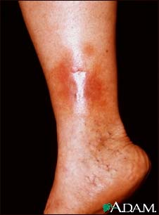 Dermatitis - stasis on the leg