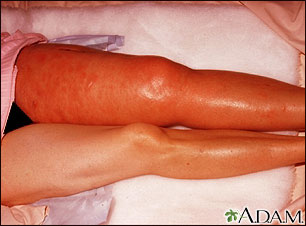 Deep venous thrombosis, iliofemoral