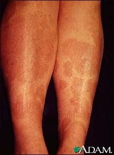 Granuloma, annulare on the legs