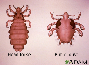 Body Lice Medlineplus Medical Encyclopedia