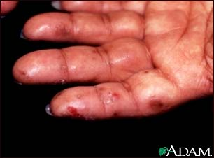 Dermatitis herpetiformis on the hand