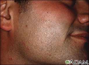 Molluscum contagiosum on the face