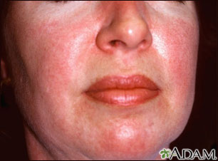 Dermatomyositis, heliotrope rash on the face