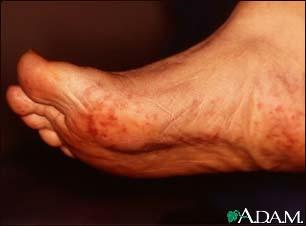 Cholesterol emboli Livedo Reticularis - feet