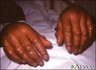 Frostbite - hands