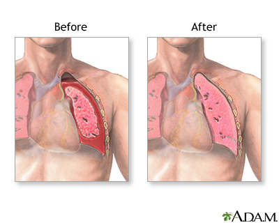 Before and after chest tube insertion