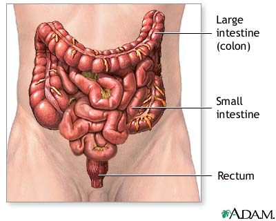 Colostomy - Series