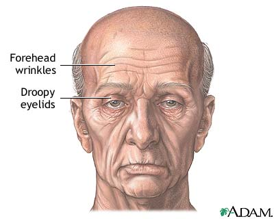 Forehead lift - series: MedlinePlus Medical Encyclopedia