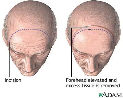 Forehead lift - Procedure