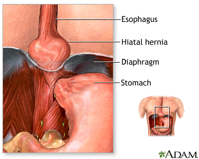 Hiatal hernia repair - series—Indications: MedlinePlus