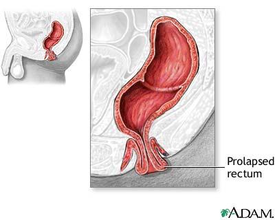 Rectal Prolapse Repair Seriesindications Medlineplus Medical
