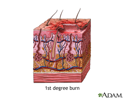 First degree burn: MedlinePlus Medical Encyclopedia Image