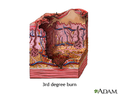 third degree burns essay