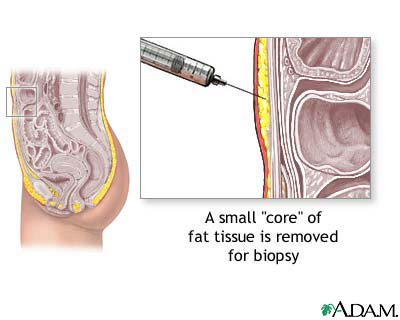 Fat tissue biopsy