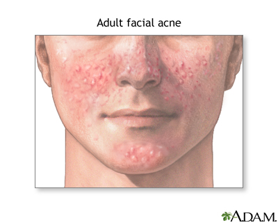 Adult facial acne: MedlinePlus Medical Encyclopedia Image