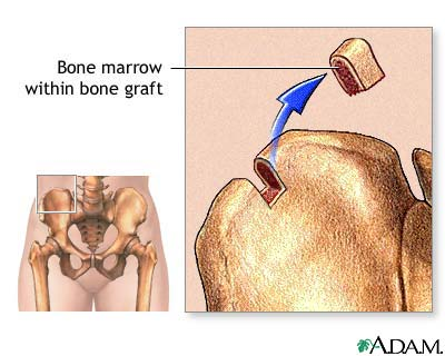 Bone marrow from hip: MedlinePlus Medical Encyclopedia Image