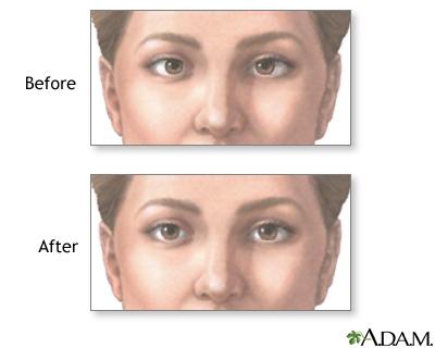 Before And After Strabismus Repair Medlineplus Medical Encyclopedia