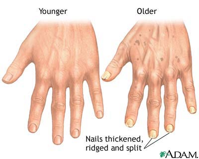 Aging changes in nails: MedlinePlus Medical Encyclopedia Image