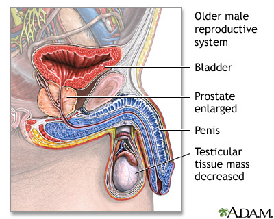 Aged male reproductive system: MedlinePlus Medical Encyclopedia Image