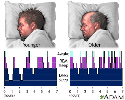 Sleep Patterns In The Young And Aged MedlinePlus Medical Custom Sleeping Patterns