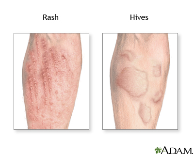 Skin blisters, Skin rash and Welts: Common Related Medical ...