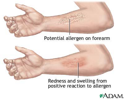 Positive reaction to allergen