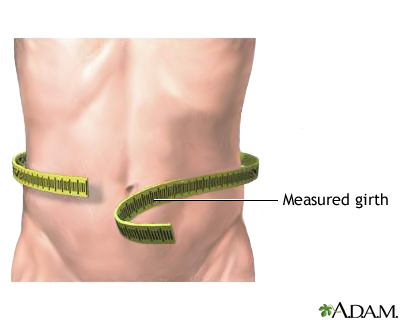 Abdominal girth measurement
