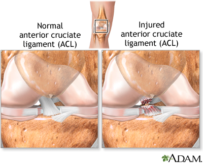 the description of how acl is injured diagnosed and repaired Description of acl injuries  because of this, dr laprade will usually  recommend a combined meniscus repair and acl reconstruction to be  performed, and.