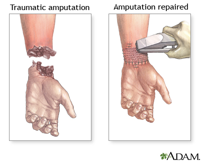 The Amputation