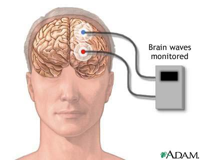 Brain wave monitor: MedlinePlus Medical Encyclopedia Image