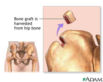 Bone graft harvest