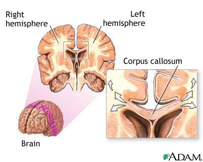 Corpus callosum of the brain: MedlinePlus Medical Encyclopedia Image