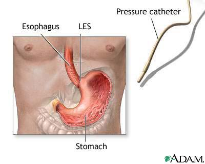 Esophageal manometry