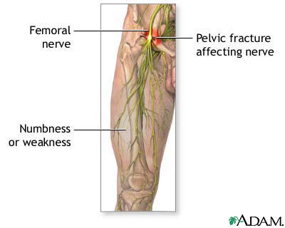femoral nerve damage: medlineplus medical encyclopedia image, Muscles