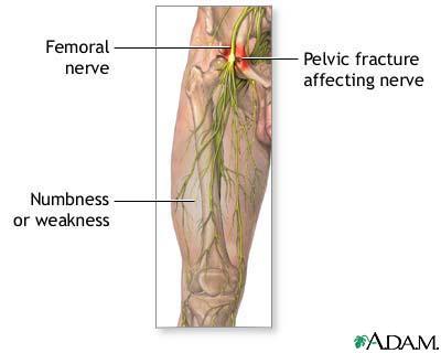 femoral nerve damage: medlineplus medical encyclopedia image, Muscles
