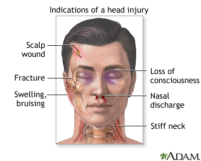 Indications of head injury: MedlinePlus Medical Encyclopedia Image