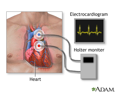 During a heart Holter monitor study, the patient wears a monitor that records electrical activity of their heart (similarly to the recording of an electrocardiogram). This usually occurs for 24 hours, while at the same time the patient also records a diary of their activity. Health care providers then analyze the recording, tabulate a report of the heart's activity, and correlate irregular heart activity with the entries of the patient's diary.